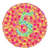 Gene that causes color blindness