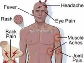 Some symptoms.