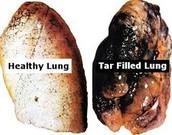 tar lung