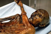 This is otzi's mummy body
