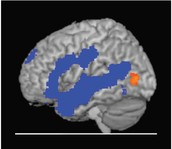 Areas of the brain activated in children when they listen to stories.