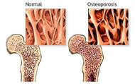 Loss of Bone Density