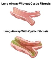 What is Cystic Fibrosis?