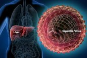 20 Facts about Hepatitis C