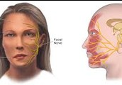 Facial Nerves Effected by Bell's Palsy
