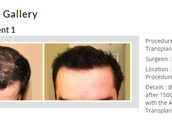 Affordable Hair Transplants Los Angeles