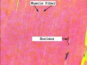 Skeletal Muscle Tissue