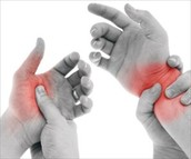 Repetetive strain injury (RSI)