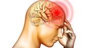What causes constant migraines?