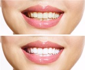 In-Office Power Whitening Systems