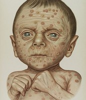 Drawing of a child with the STD