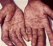 Syphilis on Hands