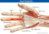 General information for tendinitis