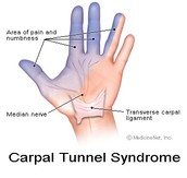 6.  Carpal Tunnel Syndrome