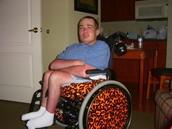 Adult with Spina bifida