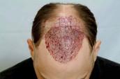 Adrenomyelopathy