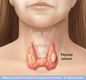 Tumor On The Gland