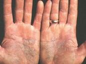This is what autoimmune disease looks like