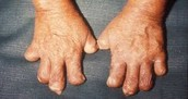 Leprosy can affect your nerves causing them to fall of.