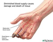 Thromboangiitis obliterans  is a rare blood vessels disease