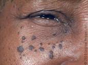 What is Dermatosis Papulosa Nigra