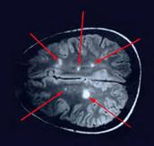 Brain Scarring
