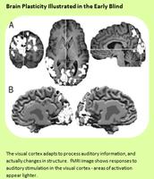 Brain will adapt