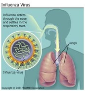 Influenza in the lungs