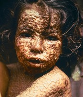 Young Bangladesh girl with smallpox in 1973