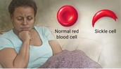 What is Sickle Cell?