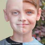 Cousin survived Cancer