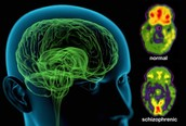 How does schizophrenia impact the brain?