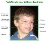 "(""Understanding Williams Syndrome"")"