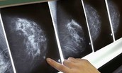 Mammograms...What are they?
