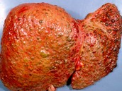 diseased liver from copper build up