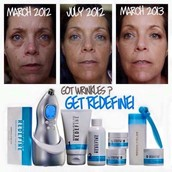 Amazing results with Redefine!