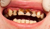 what tobacco can do to your teeth