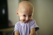 Examples of Progeria Patients