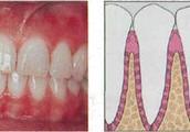 Treatment For Periodontal Disease