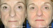 Non Surgical Liquid Facelift Treatment in San Diego