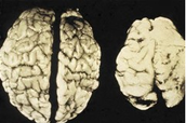 Alcohol and the effects on the brain