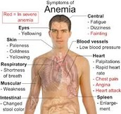 Doctors Note on: Iron deficiency anemia