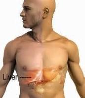 Normal vs.  Jaundice & Signs and Symptoms