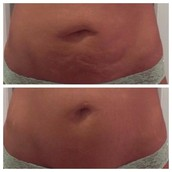 Remarkable Results in Firming Bellies!