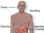 Symptoms of Salmonella: