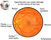 Damaged Retina