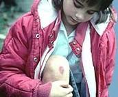 What is Hemophilia?