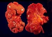 Kidney With Nephritis
