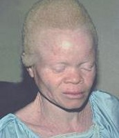 Albinism is the hair and skin