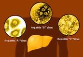 What Hepatitis looks like!